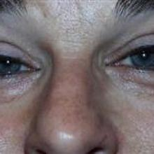 Patient with Ptosis